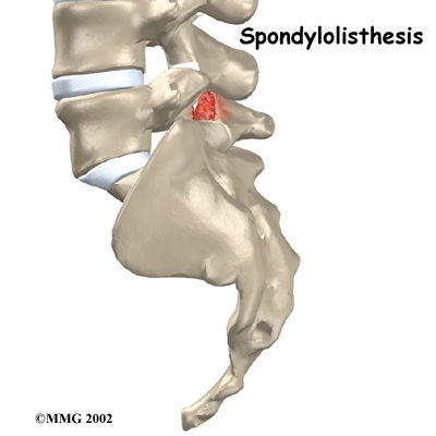 mild anterior listhesis Spondylolisthesis (or anterolisthesis) is the forward displacement of a  if a  spondylolisthesis is present, it is graded as i (mild), ii, iii, iv or v.